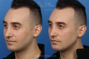 jawline contouring results on male patient in NY, NY