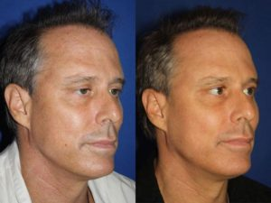 non-surgical anti-aging treatments for men in NY, NY