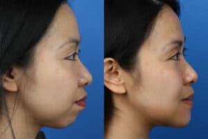 surgical chin augmentation in NY, NY