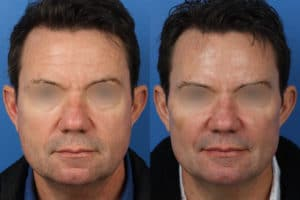 surgical anti-aging treatments for men in New York City