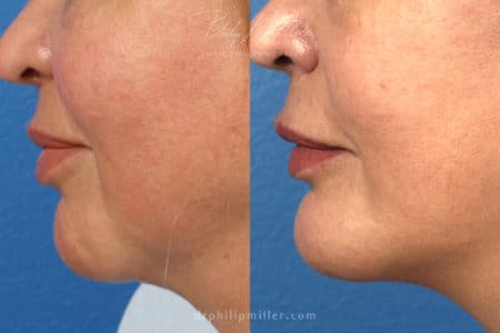 Chin implant to increase projection of chin by Dr. Miller