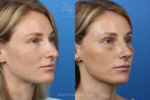 Image of a female patient showing before and after results for rhinoplasty. Giving more younger appearance. NYC, NY