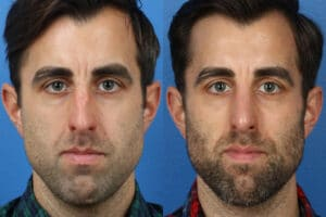 Rhinoplasty to straighten the nasal bridge of a male patient by Dr. Miller. Surgery removes dorsal hump from bridge to create a more aesthetically pleasing facial contour.
