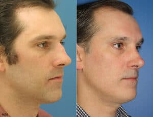 male rhinoplasty results in NYC