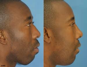 male nose job results in NY, NY