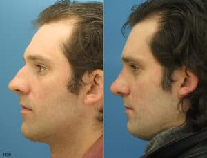 rhinoplasty before and after image of male NYC patient