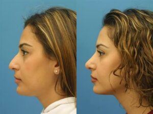 Image showing a female patient of Dr. Miller before and after the rhinoplasty improving nasal contours and physical appearance
