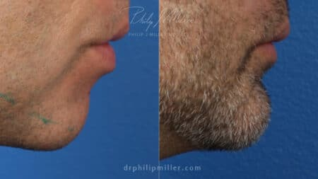 Chin implant to augment chin and define the jawline by Dr. Miller