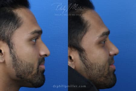 Rhinoplasty to straighten nose and refine tip by Dr. Miller