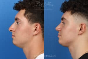 Rhinoplasty to correct the nasal bridge and tip by Dr. Miller. After surgery, tip is rotated and bridge is straightened to produce a better profile.