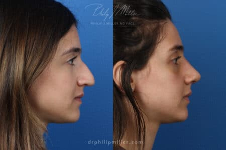 Rhinoplasty to enhance nose – 1 week post-op by Dr. Miller