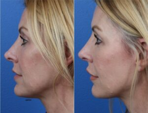 rhinoplasty results on patient with realistic rhinoplasty expectations in NY, NY
