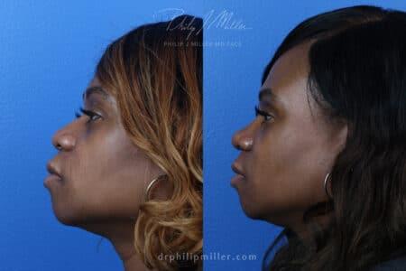 Rhinoplasty to refine the nasal bridge, 3 months post-op, by Dr. Miller