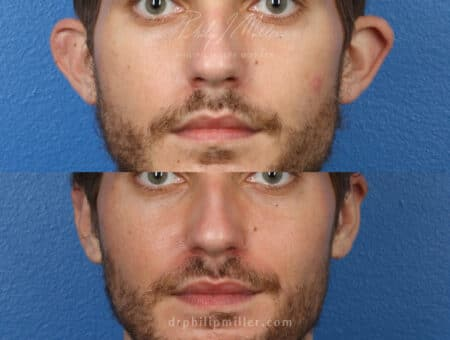 Otoplasty to correct the ear position of a male patient by Dr. Miller