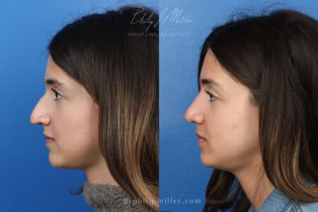 Rhinoplasty to enhance nose three months post-op by Dr. Miller.