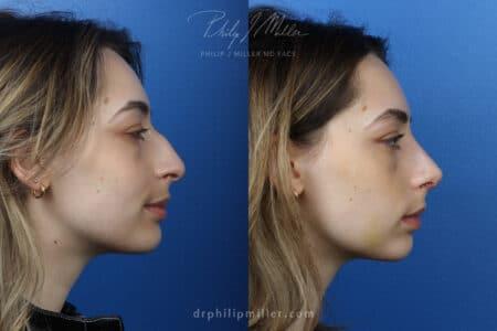 Rhinoplasty to improve the nasal bridge, one week post-op, by Dr. Miller