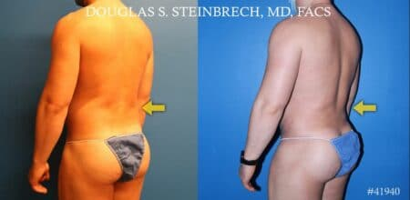 Body banking to treat Poland Syndrome by Dr. Steinbrech