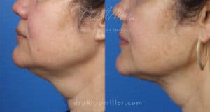 MyEllevate treatment to rejuvenate the lower face and jawline by Dr. Miller. Treatment removes loose skin under chin and creates a more defined jawline.