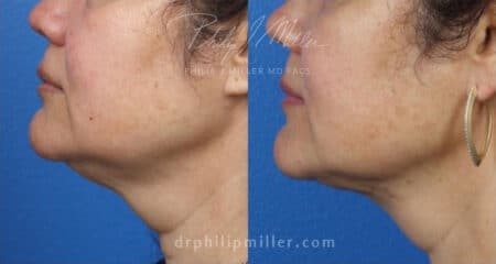MyEllevate treatment to rejuvenate the lower face and jawline by Dr. Miller