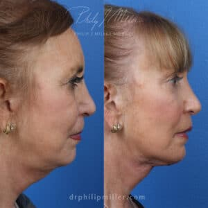 MyEllevate treatment to rejuvenate the lower face, by Dr. Miller. After treatment, skin looks firmer and there is more definition along the jawline.