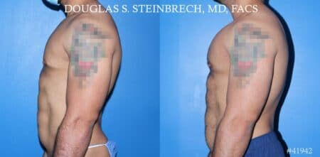 Pectoral implants to enhance the chest by Dr. Steinbrech