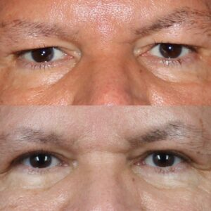 male blepharoplasty surgery results in NYC, NY