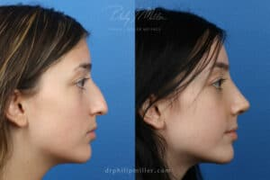 nose job patient before and after results in NYC, NY