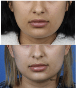 Before and after image of a buccal fat removal procedure performed in New York City