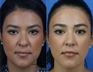 Two images of a young woman, one with chubby cheeks and one with slimmer cheeks after buccal fat removal in NYC, NY.