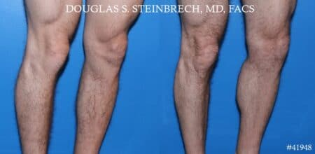 Calf implants to augment the lower leg by Dr. Steinbrech