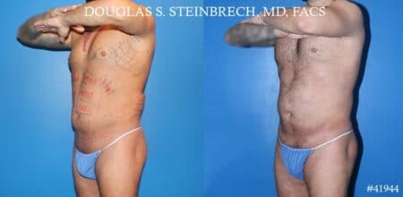Liposuction with body banking to augment pecs and glutes by Dr. Steinbrech
