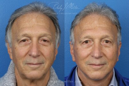 Neck lift to rejuvenate the neck and jawline by Dr. Miller