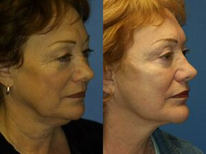 SMAS facelift surgery results in New York City