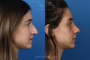 patient before and after results from an open rhinoplasty surgery in New York City