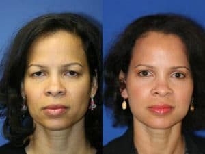 brow lift before and after results in NYC