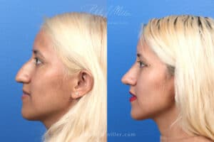 before and after results from a closed rhinoplasty in NY, NY