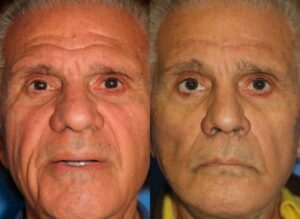 deep place facelift before and after results in NY, NY
