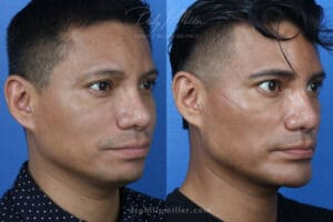 GI Jaw procedure results in NYC