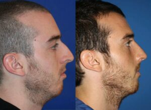open rhinoplasty before and after results in NYC, NY