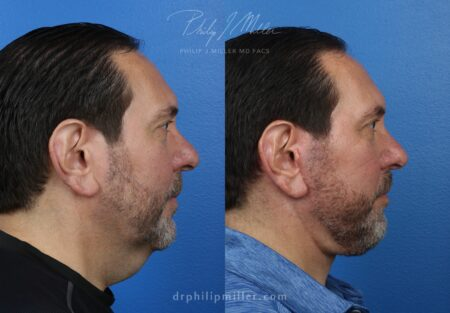 Facelift and neck lift to rejuvenate the appearance of a male patient by Dr. Miller