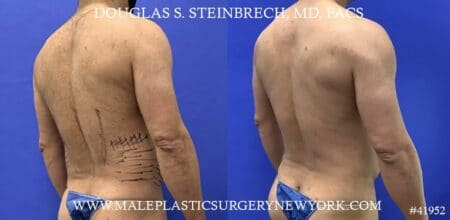 Liposuction with body banking to augment the abs by Dr. Steinbrech.