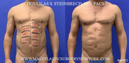 Liposuction with body banking to augment the abs by Dr. Steinbrech