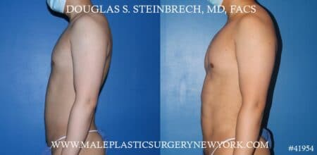 Liposuction with body banking to augment the pecs and shoulders by Dr. Steinbrech