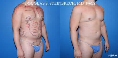 Liposuction with body banking to enhance the pecs and glutes by Dr. Steinbrech.
