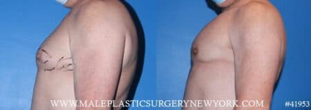 Pectoral implants to add definition to the chest by Dr. Steinbrech