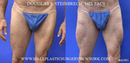Quad augmentation to enhance the thighs by Dr. Steinbrech