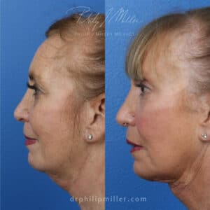 deep plane facelift surgery results provided by Dr. Miller in New York City