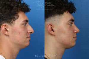 before and after rhinoplasty results in NY, NY