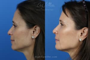 before and after results from a liquid facelift procedure in Manhattan
