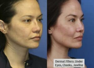 before and after results of a non-surgical facelift in NYC, NY